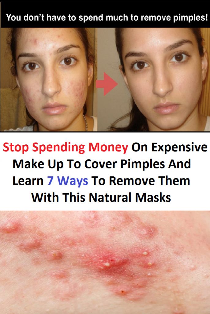 Stop Spending Money On Expensive Make Up To Cover Pimples And Learn 7 Ways To Remove Them With This Natural Masks