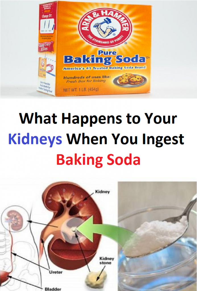 What happens to your kidneys when you ingest baking soda?